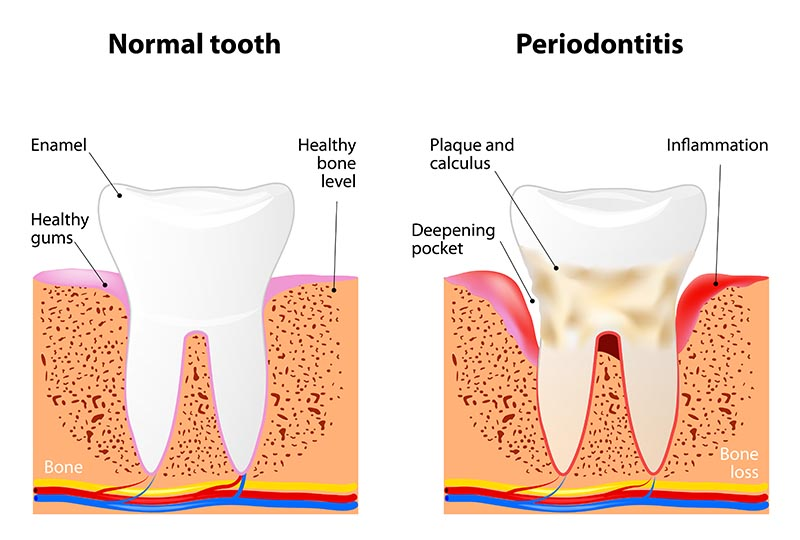 Prevention and treatments for Periodontitis and Gingivitis: Dr. L. Recoder, Baar