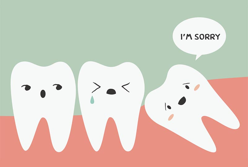 Gentle and anxiety-free removal of wisdom teeth: Dr. L. Recoder, Baar Dental Practice
