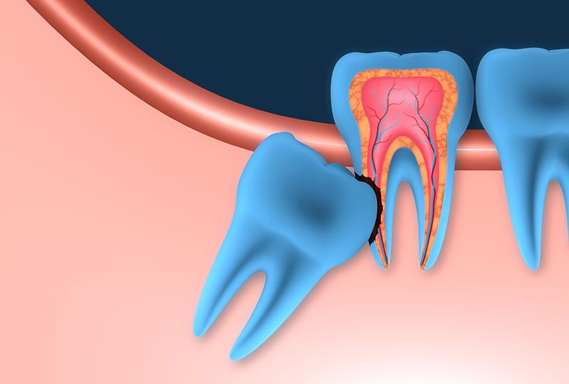 The surgical removal of wisdom teeth is performed under local anaesthesia
