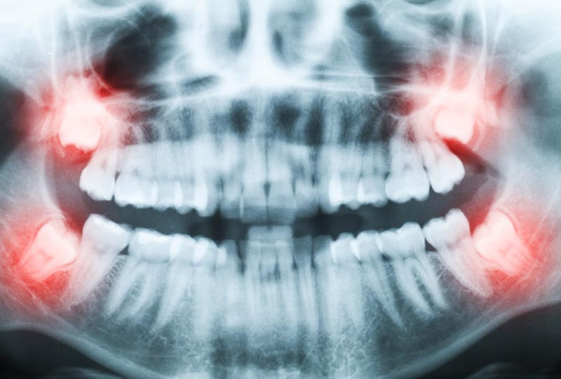 Wisdom teeth removal: Baar, Zug, Neuheim, Menzingen, Hausen am Albis, Kappel am Albis, Ebertswil, Inwil