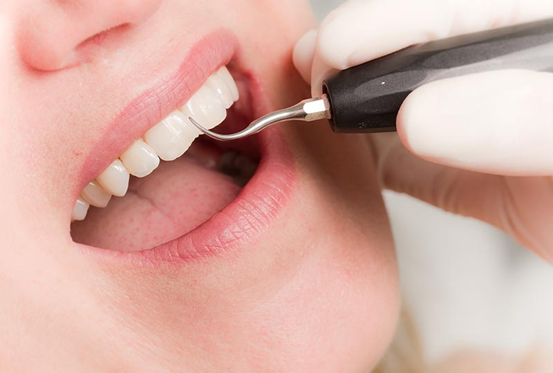 Teeth and gums will be checked extensively during a professional dental cleaning
