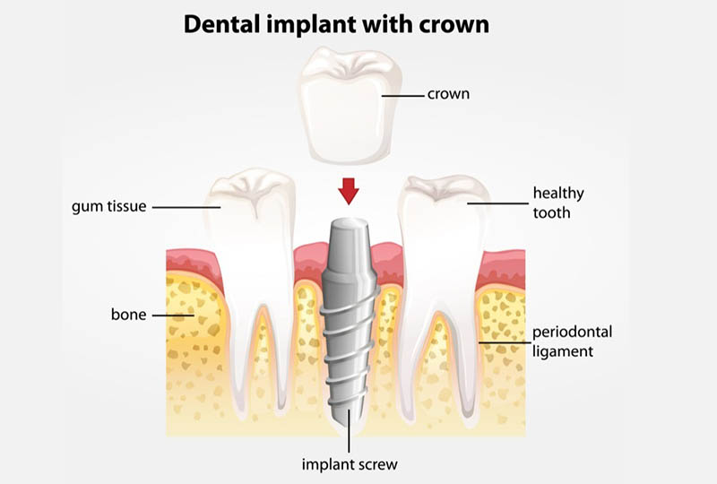 Dental implants are made of a high-impact titanium screw, an implant post, and a tooth crown